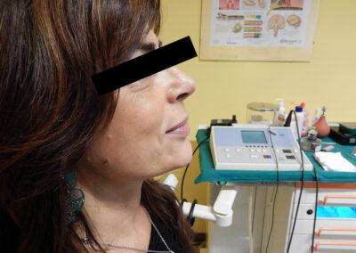 Intervento di rinopalstica #10